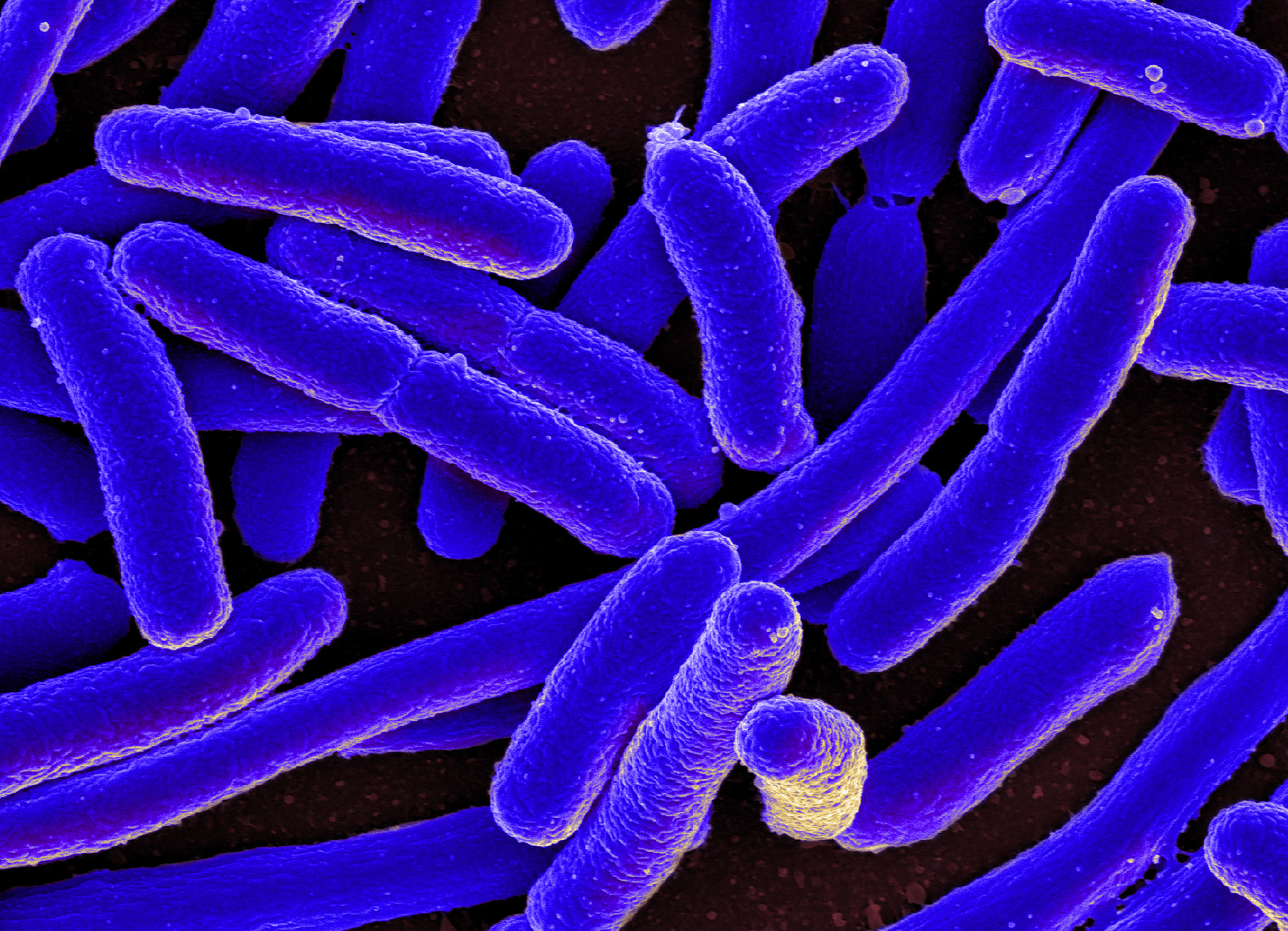 e. Coli bacteria zoomed in